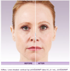 Juvederm Facial Filler Before And After Photos | Marietta Med Spa