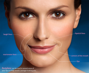 How long does the Injectable Filler Restylane Last? | Atlanta Med Spa